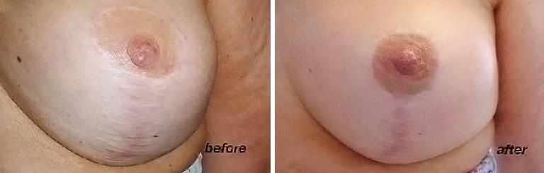 colore areola del seno