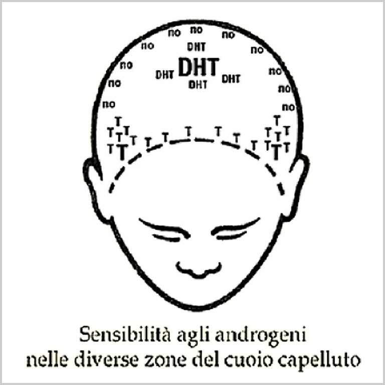 prednisone migraine treatment